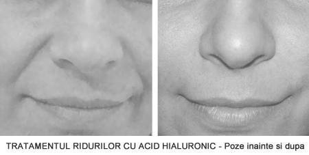 Tratamentul ridurilor cu Acid Hialuronic